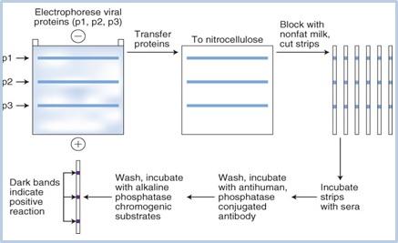 Pada metode Western Blot, dari sampel darah seseorang virus HIV dapat diketahui keberadaannya. Protein virus diperoleh dari elektroforesis. Setelah protein ditransfer ke nitroselulosa, serta melalui beberapa tahap pencucian, akan muncul band (garis-garis) di tengah substrat yang menunjukkan bagian tertentu dari HIV-1. Jika sampel darah seseorang menunjukkan satu atau beberapa band yang sama persis dengan posisi band HIV-1, itu artinya yang bersangkutan positif HIV-1.