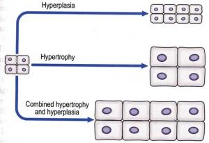 Hiperplasia, hipertrofi, dan kombinasi keduanya