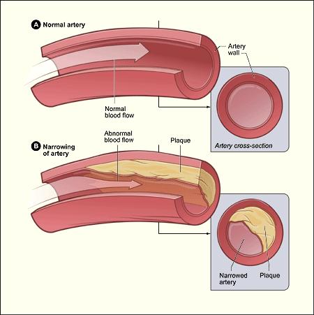 Gambar atas (A): Darah mengalir lancar pada pembuluh darah arteri yang normal. Gambar bawah (B): Plak yang ada di arteri menyebabkan penyempitan diameter arteri sehingga darah tidak mengalir lancar (http://www.nhlbi.nih.gov/health/health-topics/topics/atherosclerosis/)