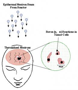 Prinsip dasar BNCT untuk terapi kanker otak