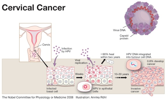 hpv and cervical cancer essay Harrington prize essay free access | 101172/jci85446 hpv vaccination to prevent cervical cancer and other hpv-associated disease: from basic science to effective interventions.