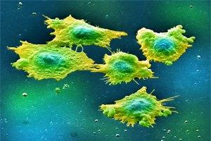 Membuat Sel Kanker Mengalami Penuaan