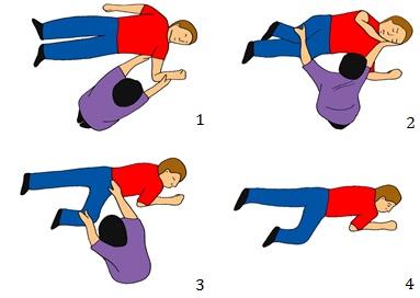 Ilustrasi recovery position. Penolong perlu memastikan pasien kondisi gawat darurat dalam posisi no. 4.