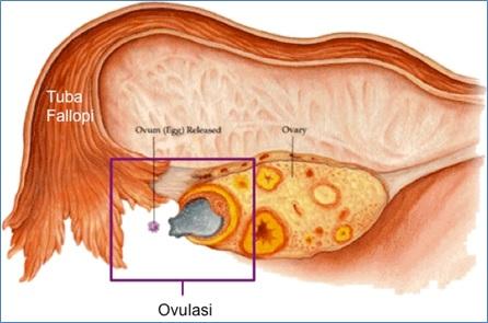 Gambar proses ovulasi sel telur yang telah matang.Sumber gambar: http://tryingtoconceive.com/ovulation