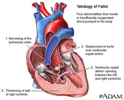 Tetralogy of Fallot, keadaan ketika jantung mengalami empat keabnormalan yang menyebabkan kurangnya jumlah darah kaya oksigen yang dipompa ke seluruh tubuh.
