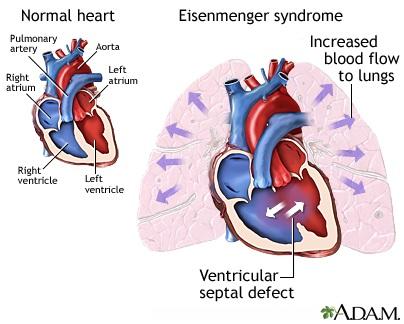 Perbandingan antara jantung sehat dan jantung dengan sindroma Eisenmenger.