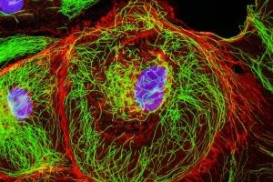 Mengamati Indahnya Fluoresens dengan Mikroskop Beresolusi Tinggi
