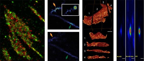 Teknologi bioimaging yang dikembangkan oleh Erick Betzig untuk mengamati sel secara tiga dimensi. Dapat digunakan untuk mengamati tingkat kerusakan sel hingga skala nanometer.