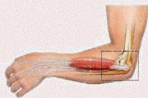 Mengenal Epicondylitis