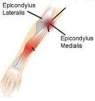 Daerah siku (epicondylus).