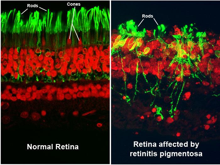 Perbandingan retina normal (kiri) dan retina yang rusak karena retinitis pigmentosa (kanan). Sumber: http://www.visionaware.org/info/your-eye-condition/retinitis-pigmentosa/12