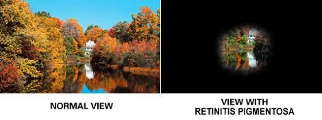 Pemandangan yang dilihat oleh orang dengan mata normal (kiri) dan penderita retinitis pigmentosa (kanan). Sumber: http://www.eyehealthweb.com/retinitis-pigmentosa/