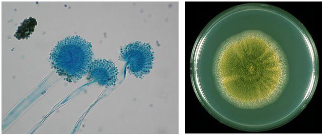 Gambar kiri: Aspergillus flavus (diambil dari labmed.ucsf.edu). Gambar kanan: Koloni A. flavus (diambil dari pfdb.net)