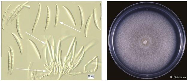 Gambar kiri: Fusarium sp. (diambil dari apsnet.org). Gambar kanan: Koloni Fusarium sp. (diambil dari pf.chiba-u.ac.jp)