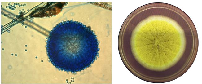 Gambar kiri: Aspergillus ochraceus (diambil dari schimmelpilze.de). Gambar kanan: Koloni A. ochraceus (bustmold.com)
