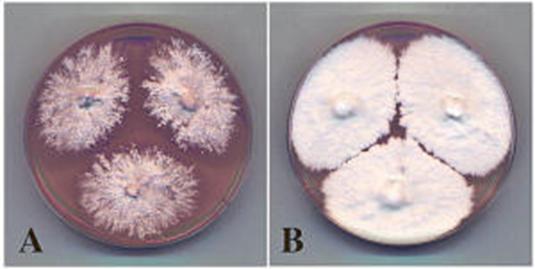 Proses penumbuhan fungi dalam berbagai media.