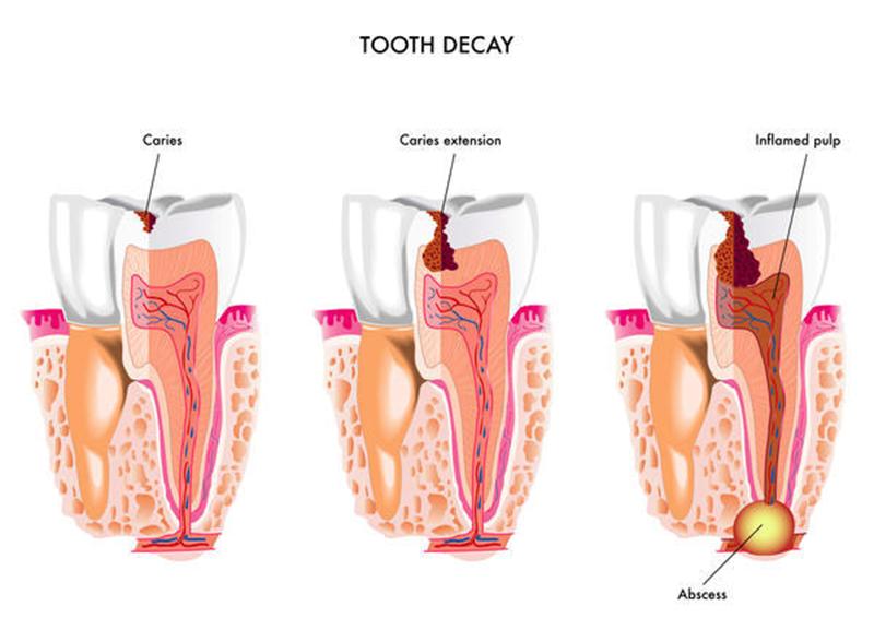 Proses infeksi pada gigi. Sumber gambar: http://thedentistshornsby.com.au