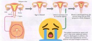 Diagram menstruasi hingga terjadinya dysmenorrhea. Sumber gambar: mygynae.co.uk
