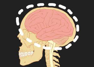 "Dapatkah Manusia Hidup ""Tanpa"" Otak?"